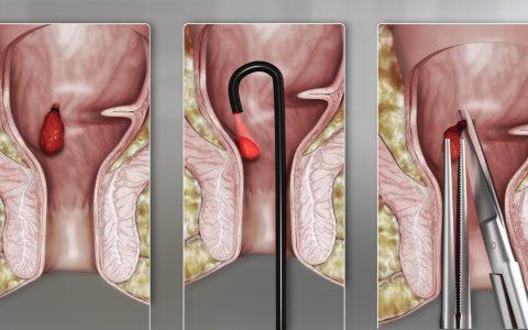hemorrhoids treatment singapore